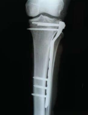 screws and plates to connect the fracture of the tibia, X-ray
