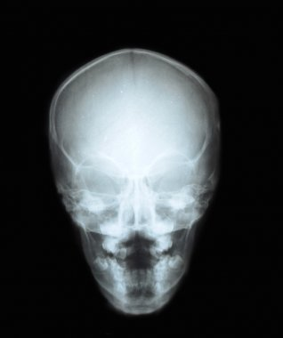 X-ray of the skul