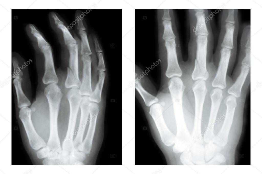 Boxer-Fraktur, x-ray — Stockfoto © sementer #32658659