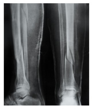 Leg fracture with displacement, X-ray
