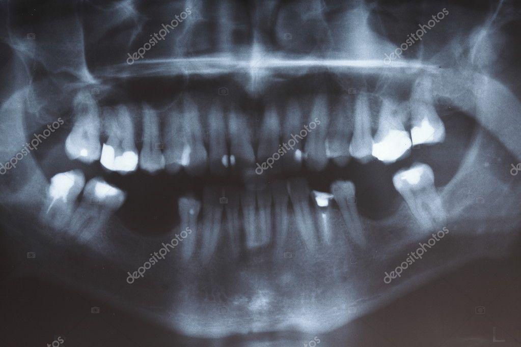escáner de rayos x de los dientes de los seres humanos — Foto de ...