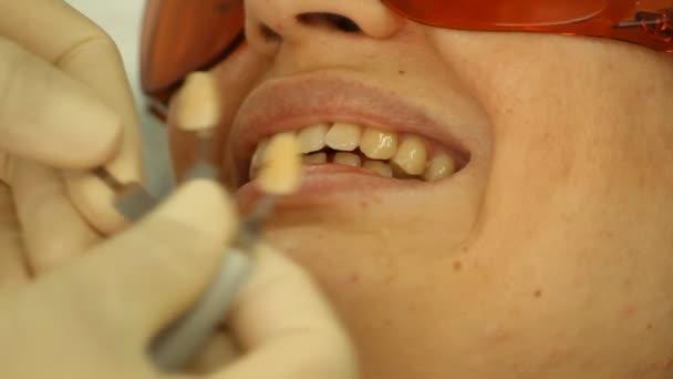 Teeth Whitening. Fixing color. stomatology
