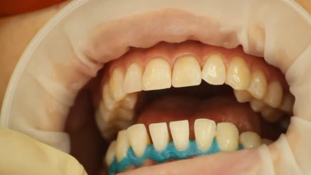 aplikace bělící gel na zuby