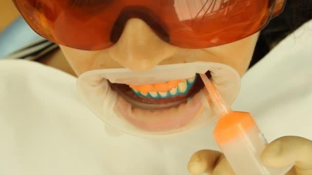 bělení zubů. aplikace bělící gel na zuby. stomatologie