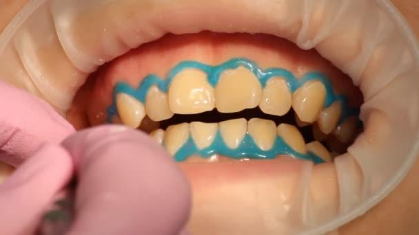 Teeth Whitening Dentistry