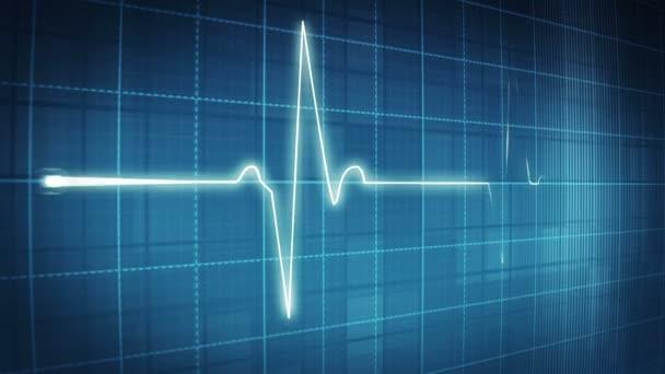 EKG elektrokardiogramu pulzní trasování