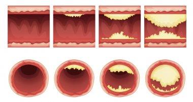 plaque accumulation