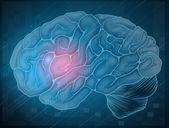 mozek s bolestí