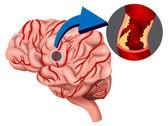 krevní sraženina koncept v mozku