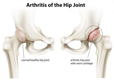 Arthritis of the hip joint