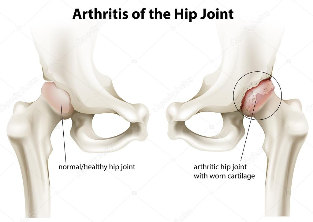 Arthritis der das Hüftgelenk — Stockvektor © blueringmedia #41076397
