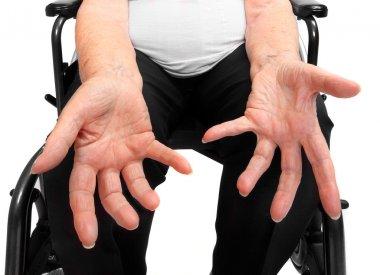 Senior women's wrinkled empty hand. Poverty metaphor.