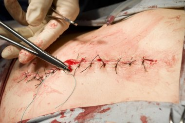 Surgical stitches