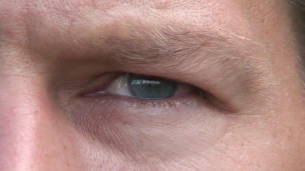Men eye 1