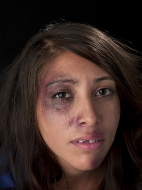 crying woman with bruises on her face