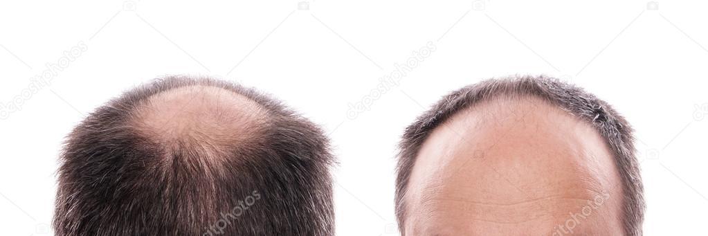 Perte de cheveux — Photographie buecax © #26531201