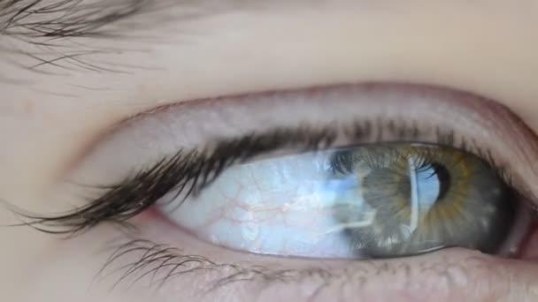 makró szem