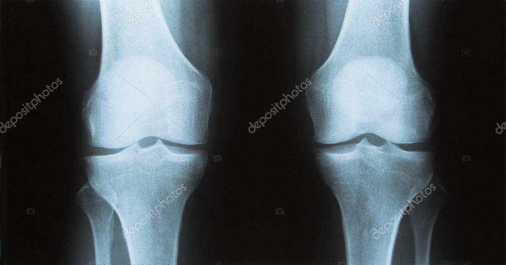 X Ray Of The Knee Femur And Tibia Stock Photo Lusoimages 13302319