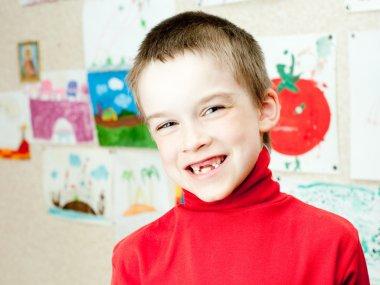 Boy shows missing teeth