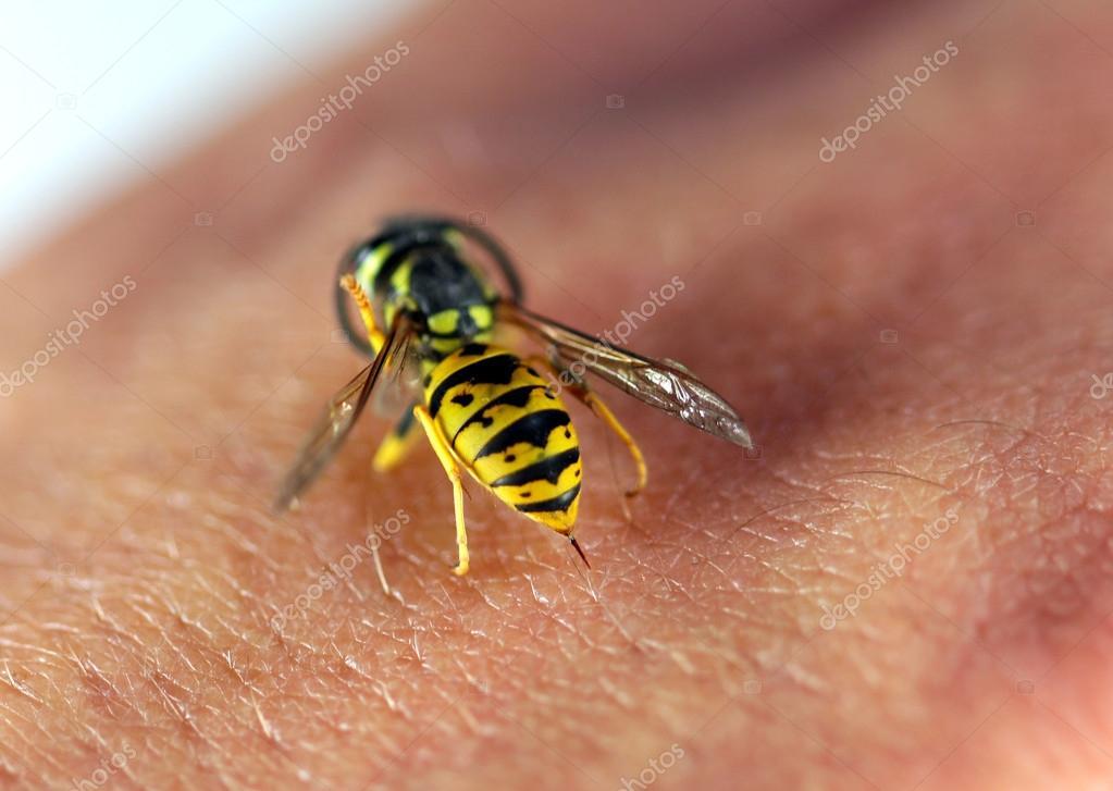 Wasp on human hand