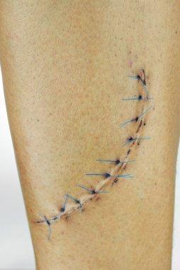 Stitched wound