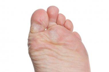 Callus on toes
