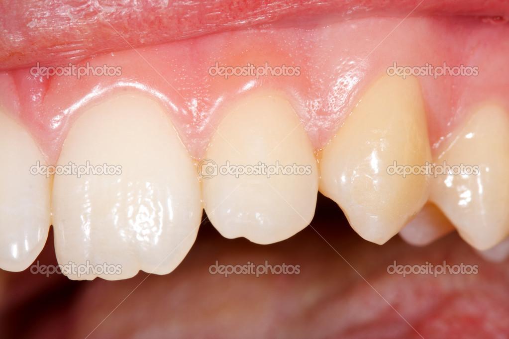 dientes humanos sanos — Foto de stock © Lighthunter #18680603