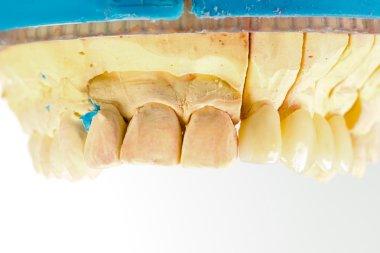 Pressed ceramic teeth