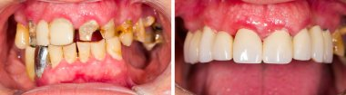 Denture Before and After Treatment