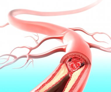Atherosclerosis in artery caused by cholesterol plaque