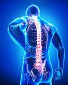 zadní bolest anatomie