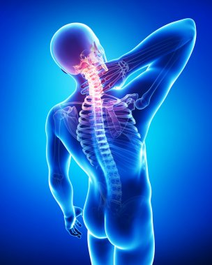 X-ray of neck pain