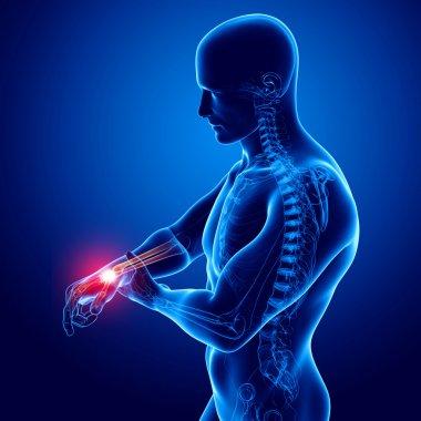 Hand pain anatomy in blue