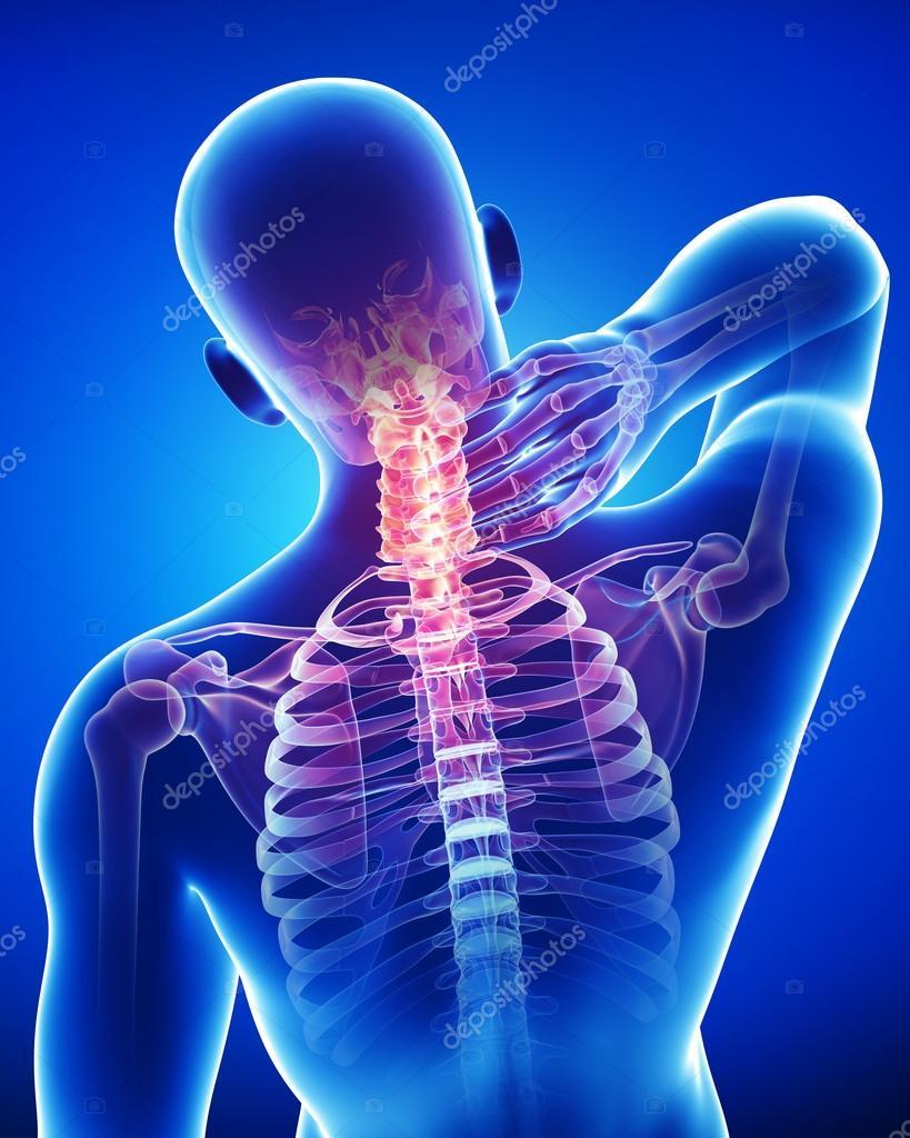 X-ray of neck pain — Stock Photo © pixologic #22672789