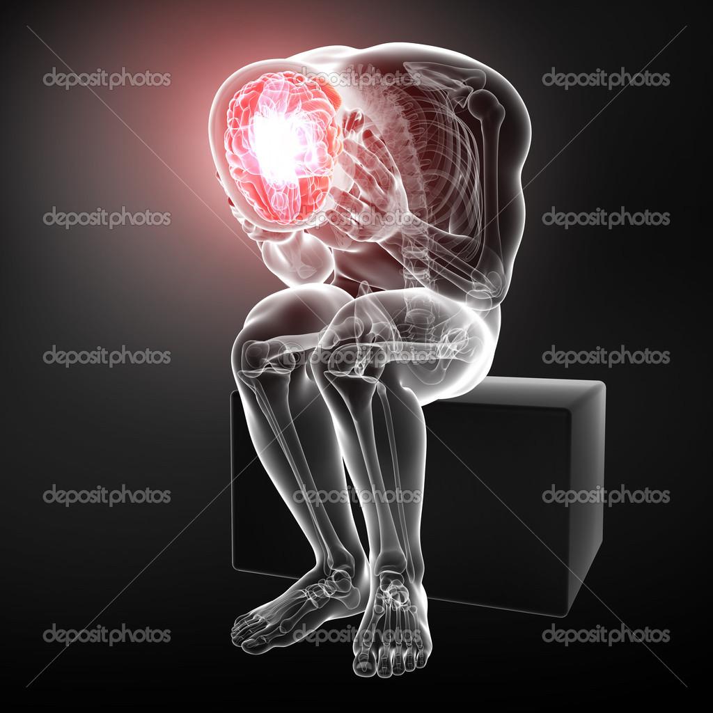 Gehirn Schmerz Anatomie — Stockfoto © pixologic #22674241