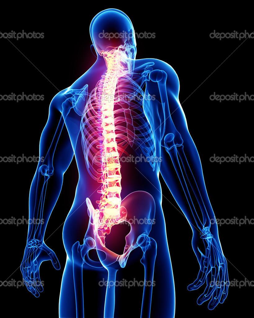 Rücken Schmerzen Anatomie — Stockfoto © pixologic #22678269