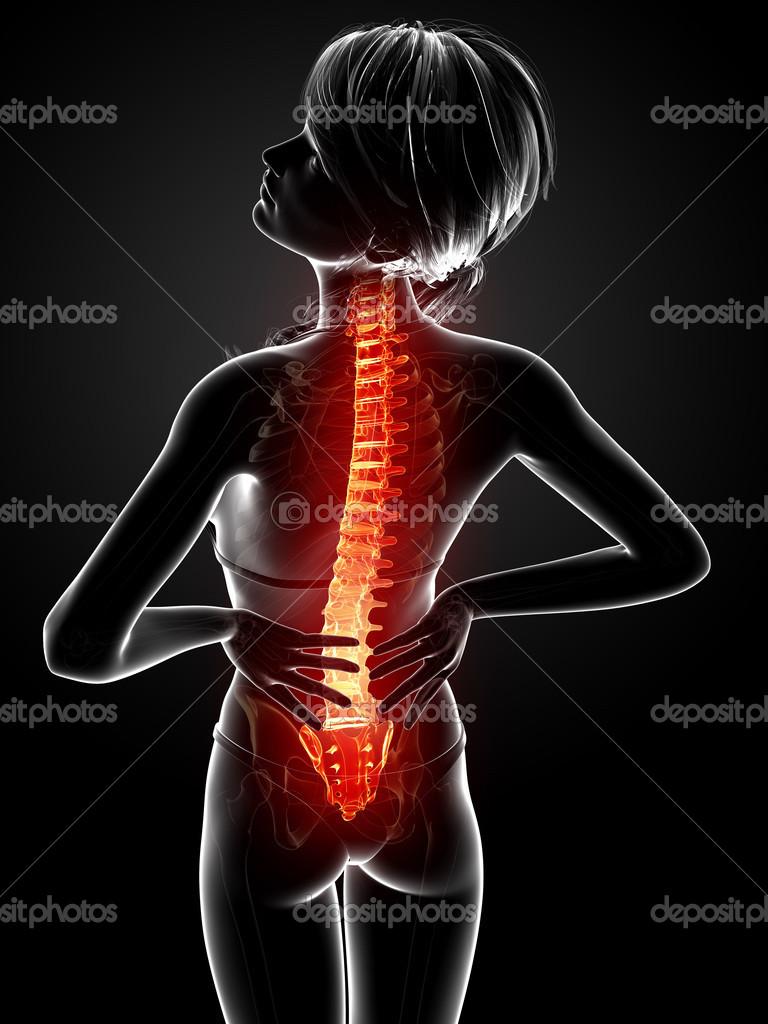 Illustration des menschlichen Rückenschmerzen mit hervorgehobenen ...