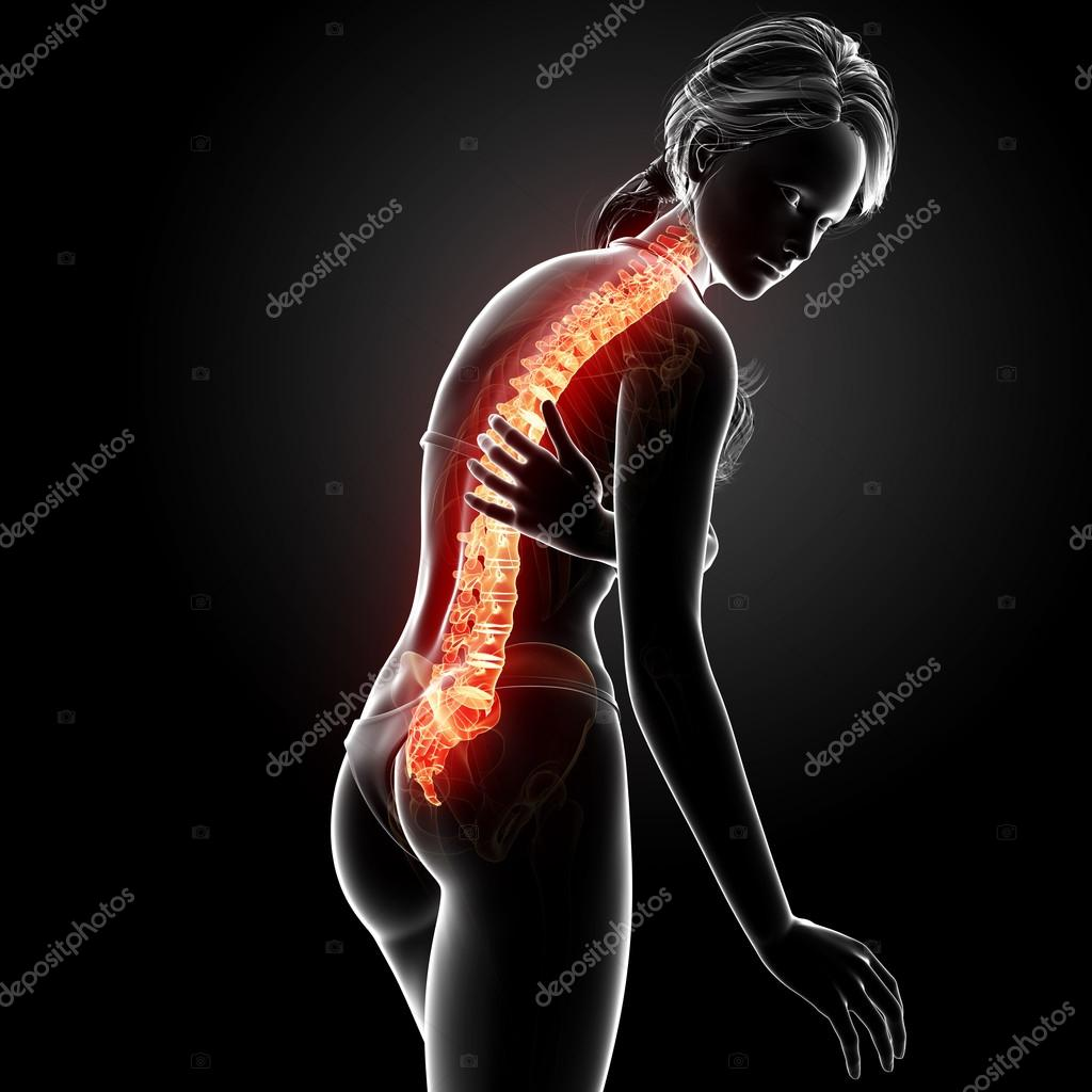 Illustration of human back pain with highlighted spinal cord — Stock ...