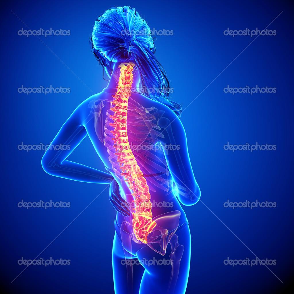 Ilustración del dolor de la columna vertebral humana con la médula ...