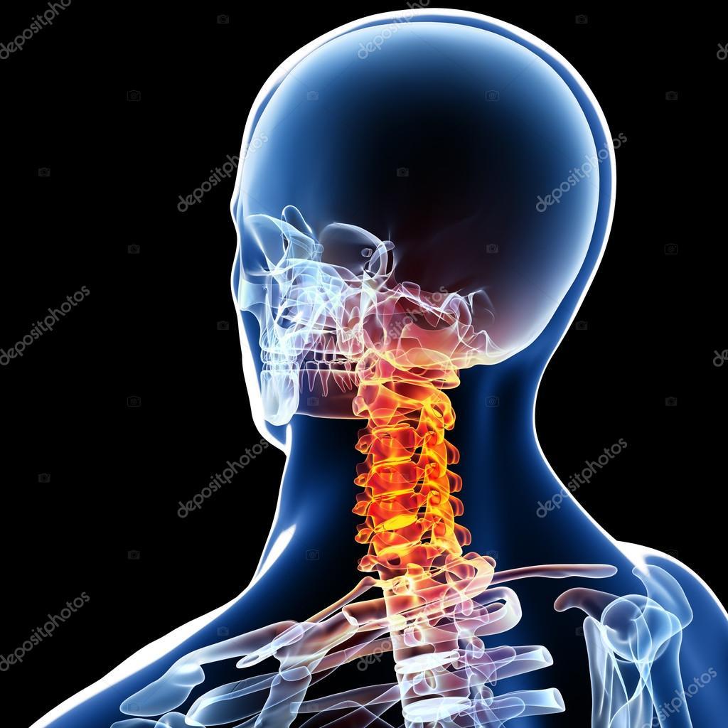 X-ray of neck pain — Stock Photo © pixologic #23690053