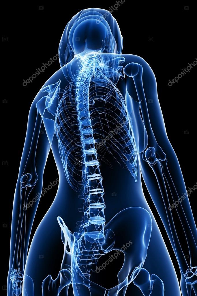 weibliche Wirbelsäule Schmerzen Röntgen-Anatomie — Stockfoto ...