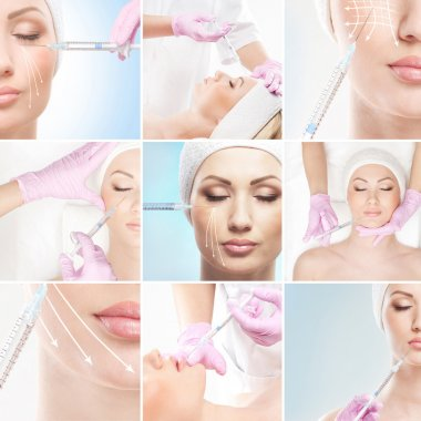 Collection of pictures with face lifting procedures