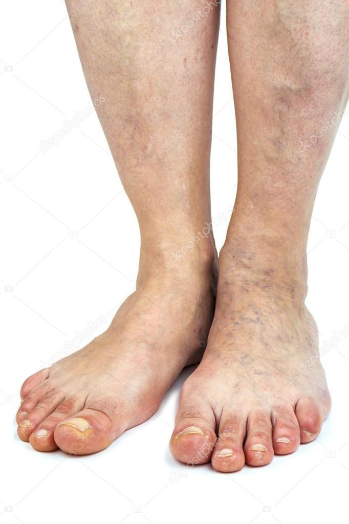 åderbråck på foten