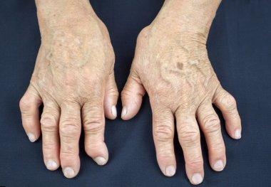 Hands Of Woman Deformed From Rheumatoid Arthritis