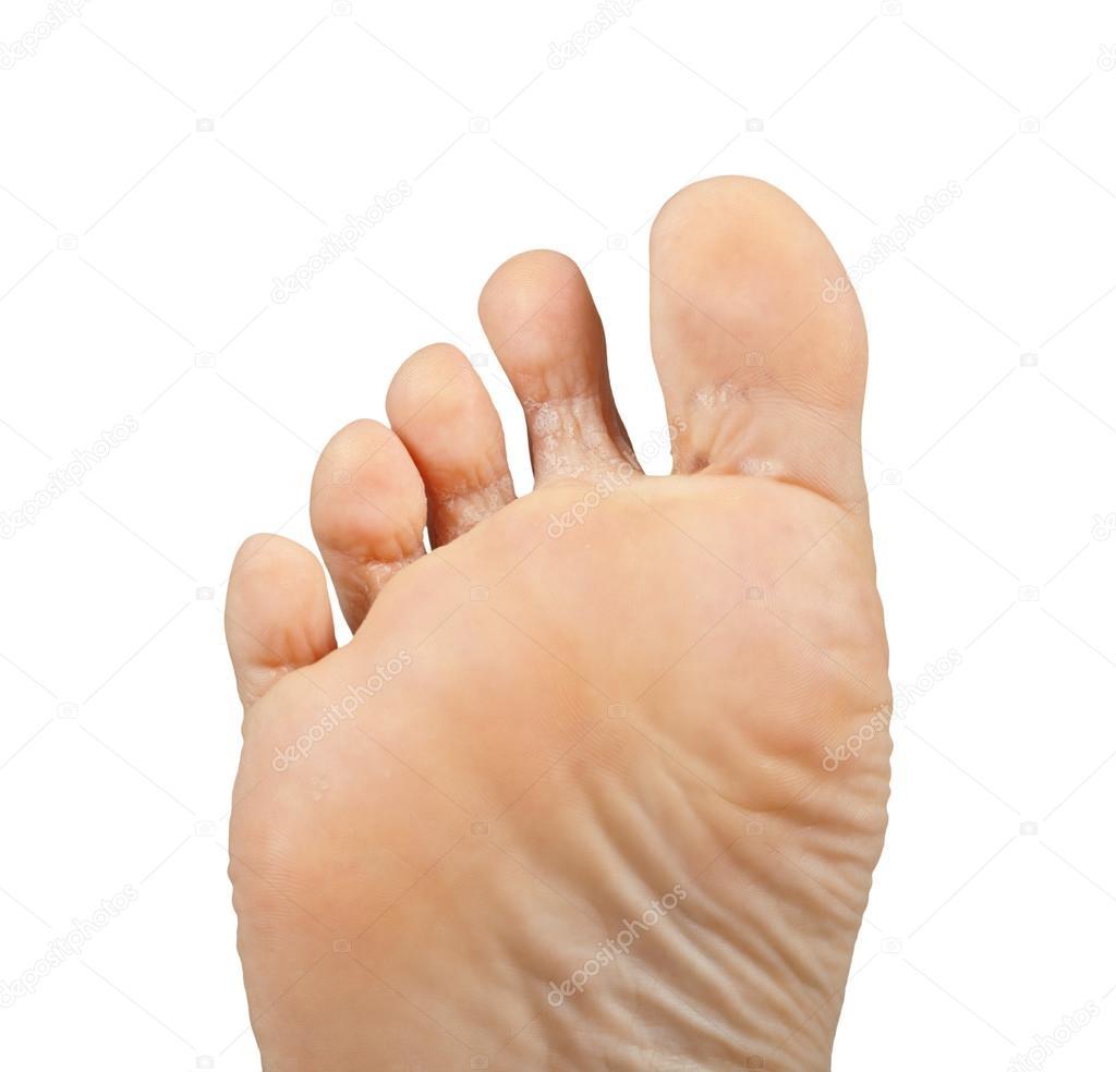 Care Este Cel Mai Bun Tratament pt. Ciuperca Piciorului si Micoza Unghiei
