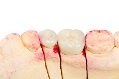 Teeth rehabilitation
