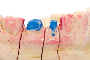 Teeth stump