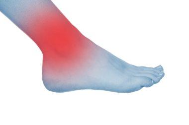 sore knee, legs, shown red, keep handed