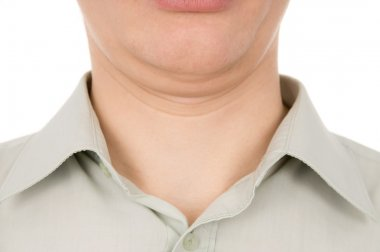 the guy the second chin