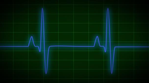 Heart Monitor EKG